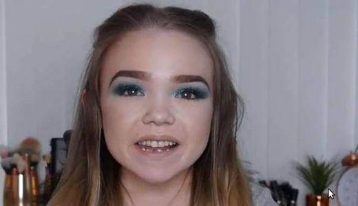 Sakit dan Cacat Fisik tak Halangi Gadis Ini Jadi Youtuber, Begini Kisahnya
