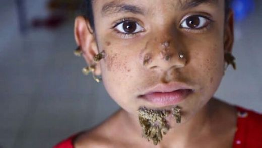 Sindrom Aneh, Wajah Gadis Ini Ditumbuhi Akar Pohon