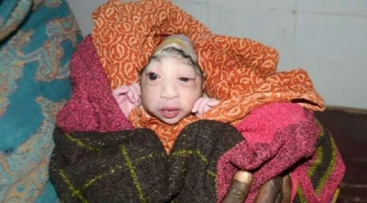 Bayi Mirip Alien Lahir di India, Ibunya Menolak Menyusukan