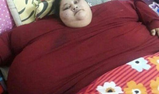 Berat Wanita Setengah Ton Ini Berhasil Diturunkan 323 Kg dalam 3 Bulan