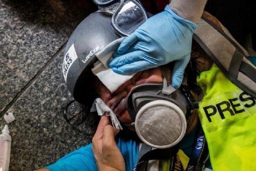 Toriq Hidayat Minta Kemenlu Proaktif Bela Jurnalis Indonesia yang Tertembak