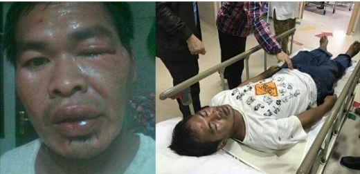Tantang Laskar FPI Duel Satu Lawan Satu, Setelah Kalah Pendukung Ahok Ini Mengadu Ke Polisi Dan Mengaku Dikeroyok Sepuluh Orang