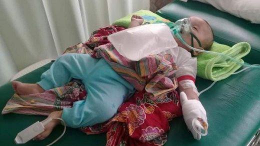 Kabut Asap Telan Korban, Bayi di Sumsel Meninggal Karena ISPA