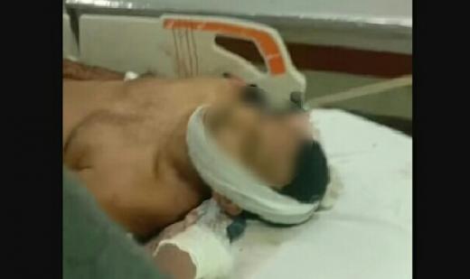 Dikeroyok di Kebayoran Baru, Anggota Brimob Tewas dan Prajurit Kopassus Terluka