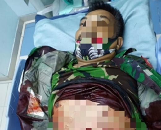 Prajurit TNI Tewas Ditusuk Orang Tak Dikenal di Tambora