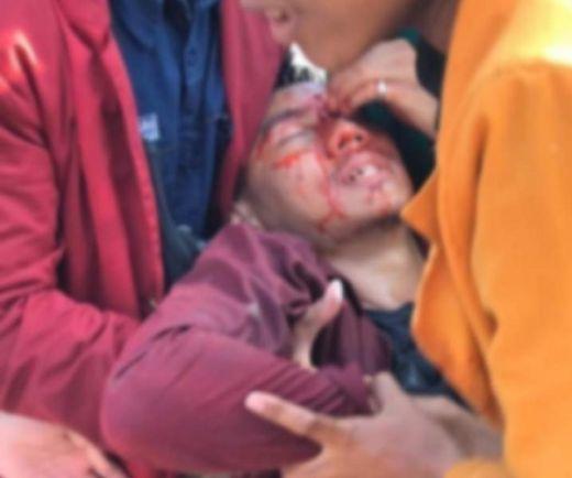 Alami Luka-luka dan Terpapar Gas Air Mata, Sejumlah Mahasiswa Korban Demo DPR Dilarikan ke RS